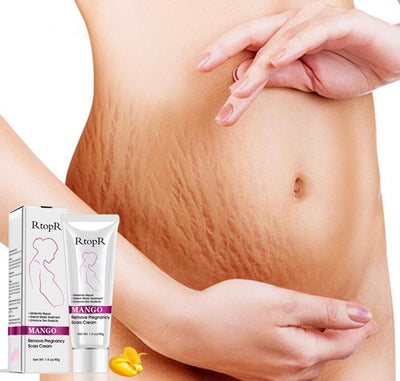StructuredShop stretch marks Top Quality Stretch Marks Cream