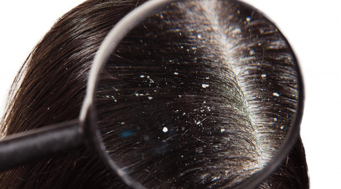 Dandruff Forming & Removal Solution