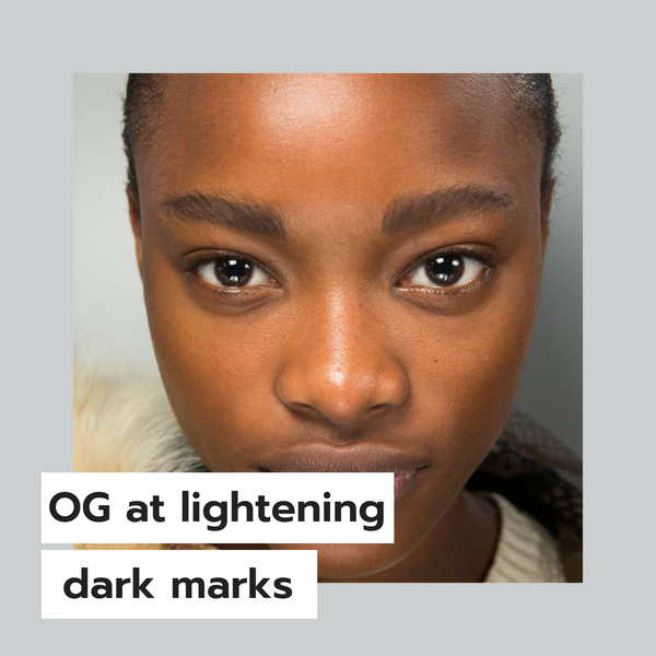 How did I become an OG at lightening dark marks?