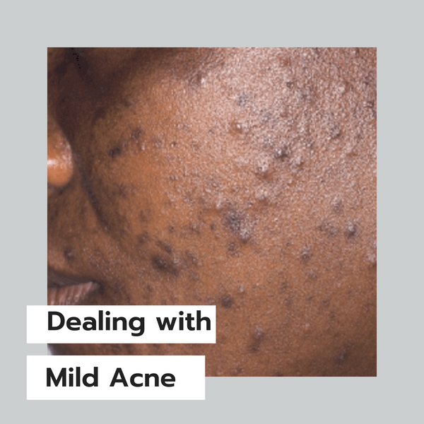 How I deal with Mild and Occasional Acne