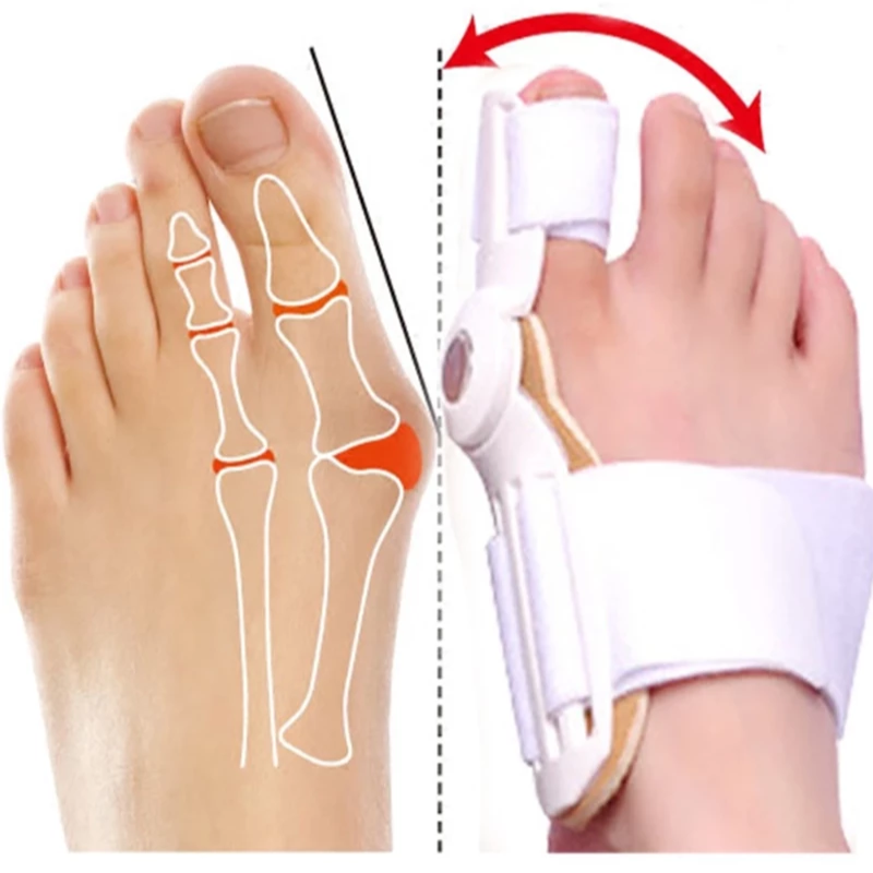 Best Orthopedic Bunion Corrector - A Non-Surgical & Bunion Relief Treatment