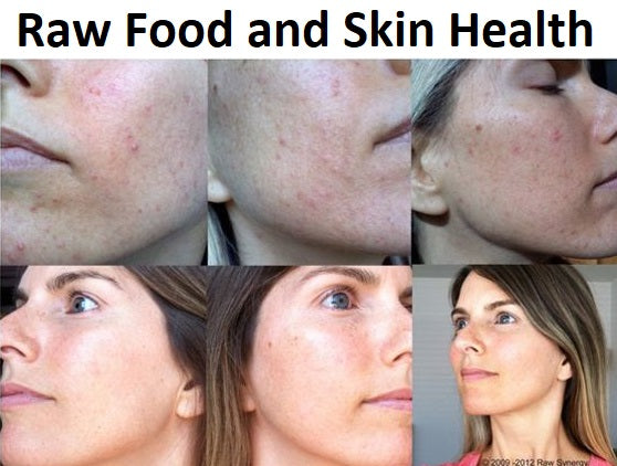 Raw Food and Skin Health,raw food skin before and after,food for healthy hair and skin,tuna benefits for skin,diet for clear skin,foods bad for skin,best food for skin,skin tightening foods,Page navigation