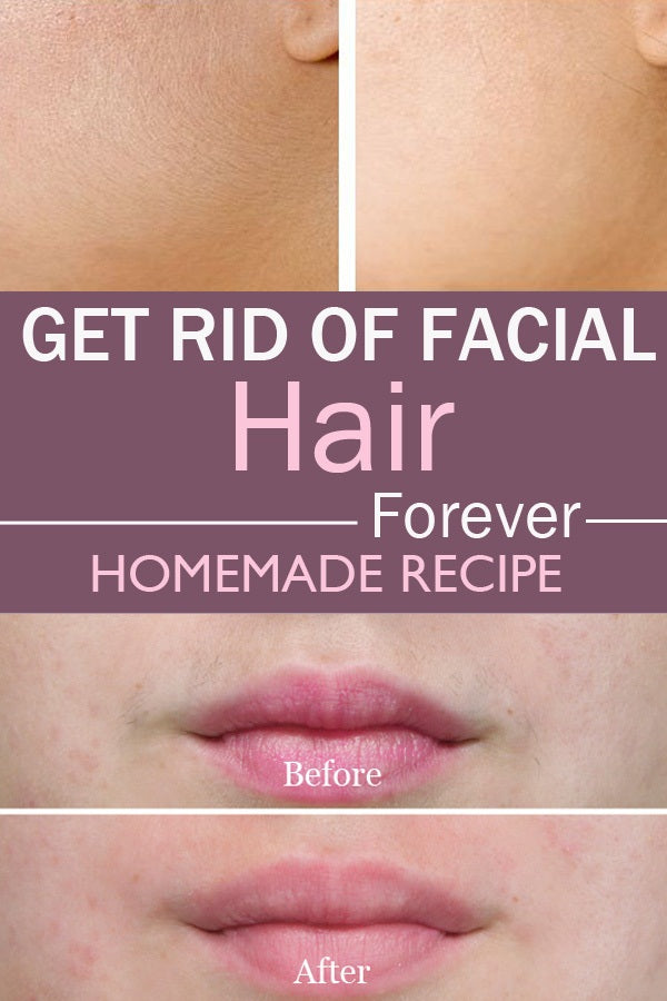 How to Get Rid of Unwanted Facial Hair, how to get rid of facial hair permanently, how to remove facial hair permanently with honey, how to get rid of coarse chin hair, how to remove facial hair at home instantly, how to get rid of facial hair without shaving or waxing, facial hair removal mask, permanent facial hair removal, how to remove facial hair permanently ayurveda, how to remove facial hair permanently with honey, how to remove facial hair permanently ayurveda, how to remove facial hair permanently without laser, how to remove hair from face naturally, how to remove hair permanently from private parts, facial hair removal mask, how to remove facial hair naturally in one day, how to get rid of coarse chin hair