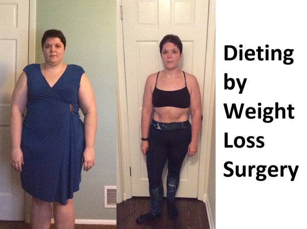 Dieting by Weight Loss Surgery,6 month diet before weight loss surgery,diet after gastric sleeve surgery,fake gastric bypass diet,long-term diet after gastric bypass surgery,gastric bypass diet without surgery,gastric bypass diet pdf,diet for quick weight loss before surgery,1200 calorie pre bariatric surgery diet