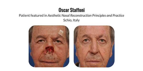 Patient testimonial  review of Aesthetic Nasal Reconstruction book by Dr. Frederick Menick