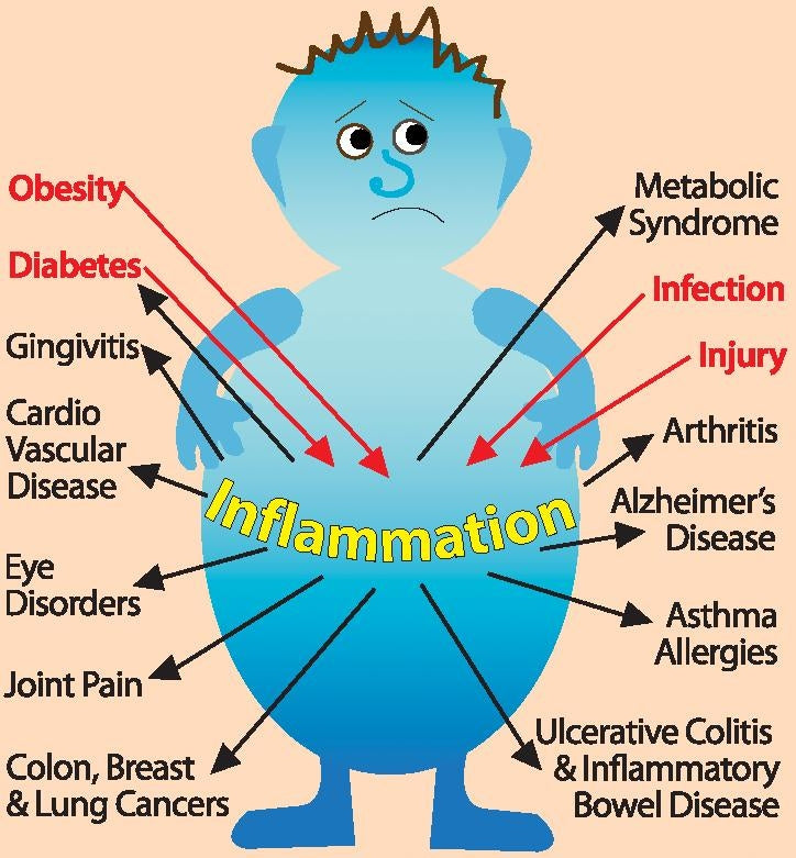 Does Inflammation Affect You?