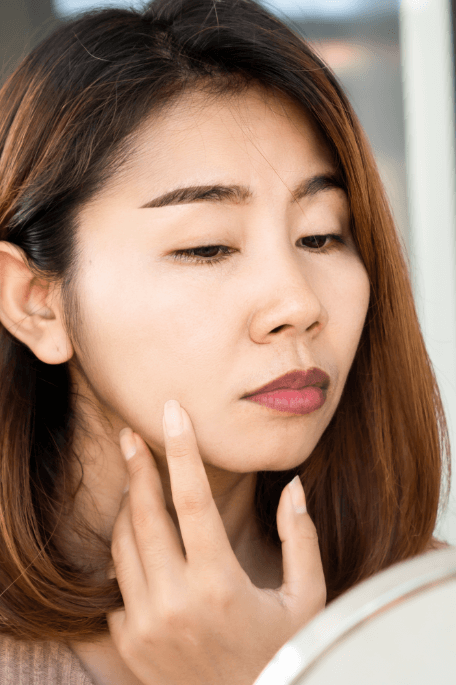 What Is The Best Natural Treatment for Melasma