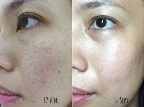 FRANKIEMONIAL Age Spots Congested Skin