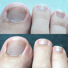 Nailed It Nail + Cuticle Oil before and after result - Feet