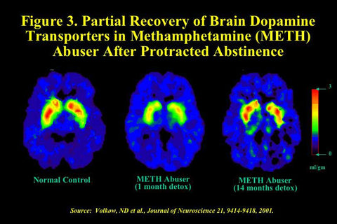 Brain Recovery Scans from Methamphetamine Abuse