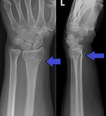 Wrist Fracture from a Snowboard Crash