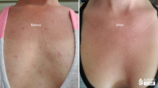 fungal acne before and after