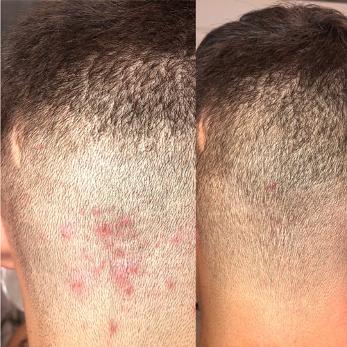 folliculitis treatment before and after