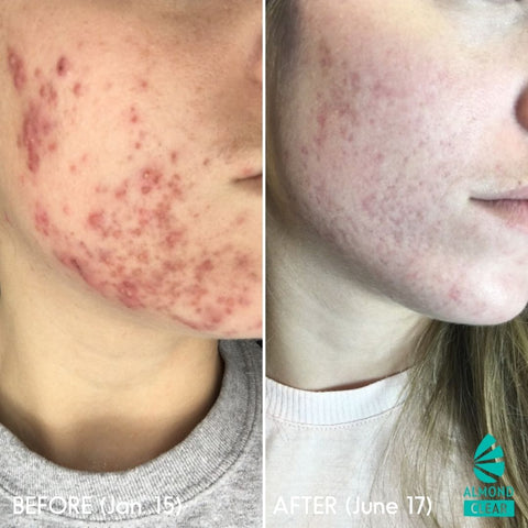 mandelic acid before and after for acne