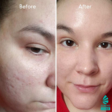 mandelic acid before and after for brightening the skin