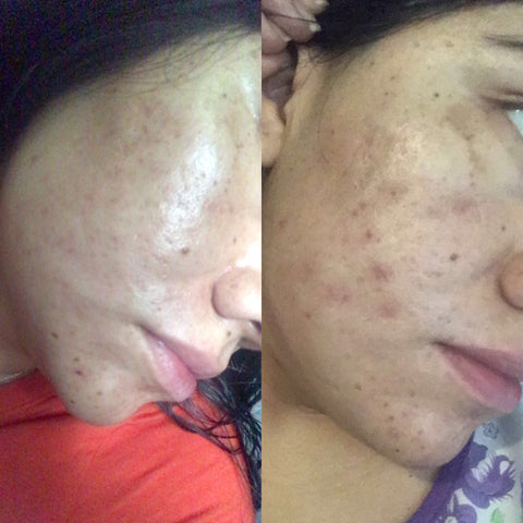 before & after mandelic acid treatment almond clear face
