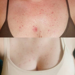 before and after of folliculitis after using mandelic acid