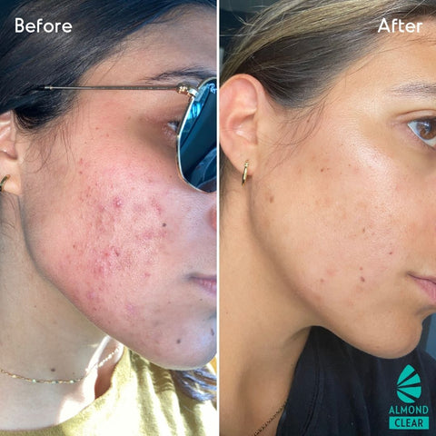 mandelic acid before and after for folliculitis