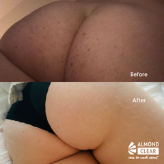 before and after mandelic acid treatment butt acne folliculitis