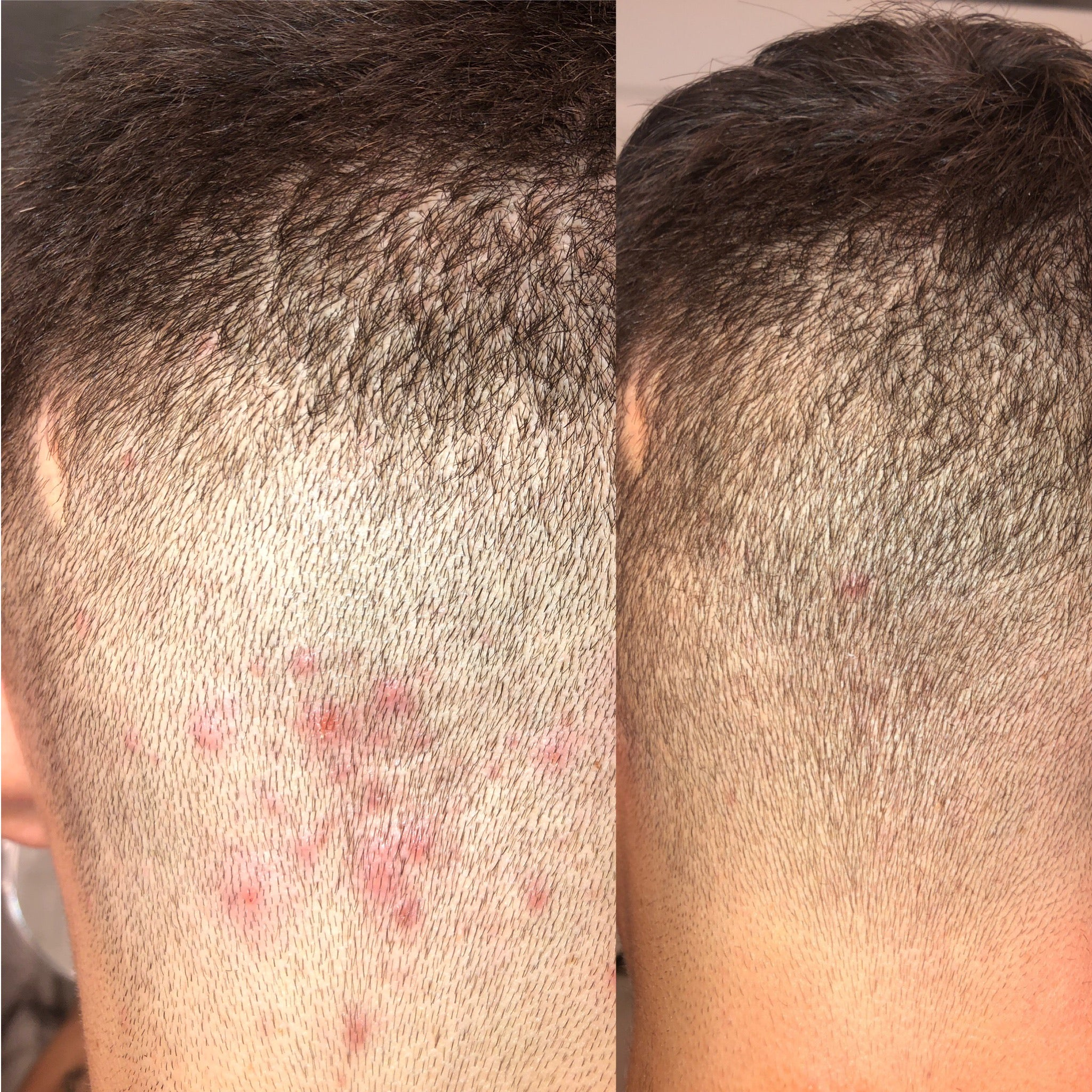 almond clear is a good choice for folliculitis treatment