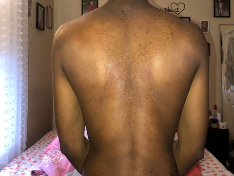 fungal acne on back