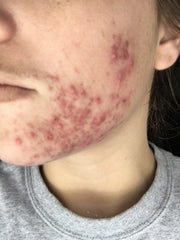how long does mandelic acid take to fade hyperpigmentation?