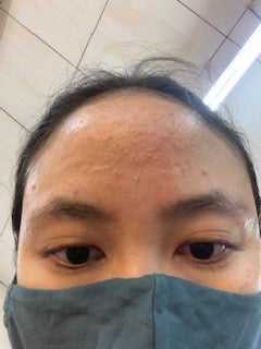 What does fungal acne look like?