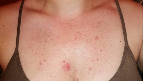 fungal acne on chest