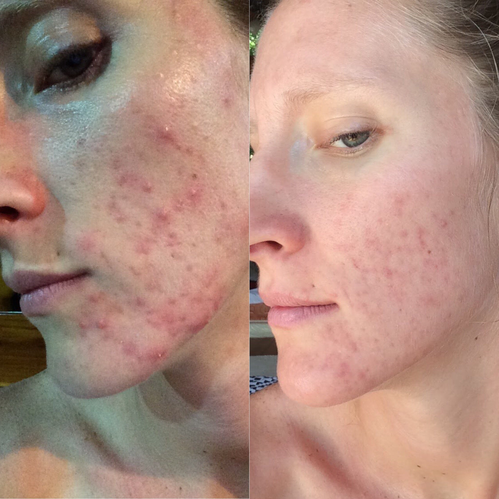 before and after mandelic acid for acne