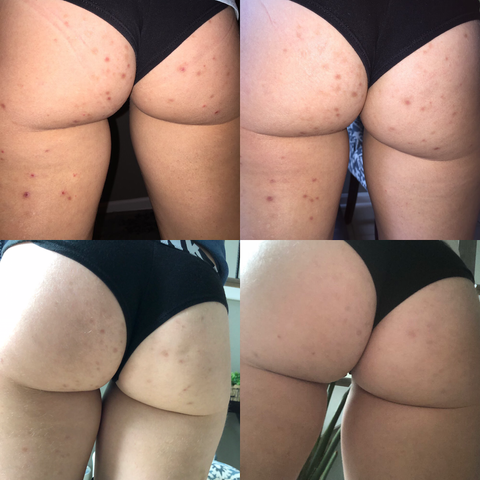 red bumps on butt pictures