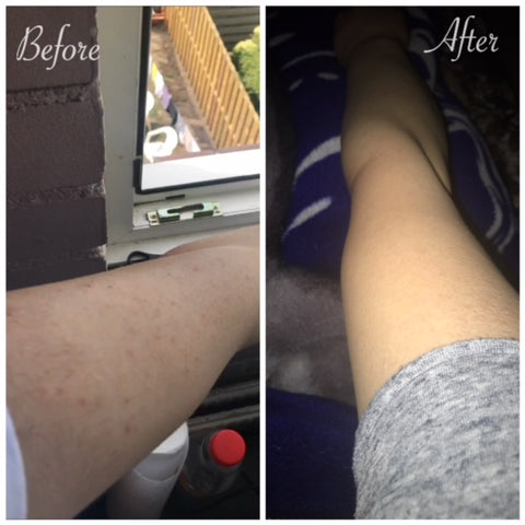 before and after arm acne folliculitis mandelic acid treatment