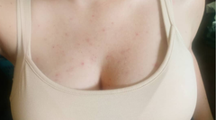 "chest acne/folliculitis treatment ""after"" photo"