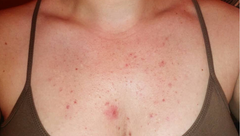 "chest acne/folliculitis treatment ""before"" photo"
