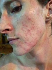"facial acne treatment mandelic acid ""before"" photo"