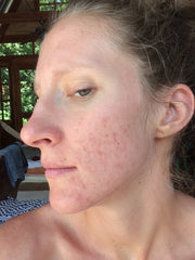 "facial acne treatment mandelic acid ""after"" photo"