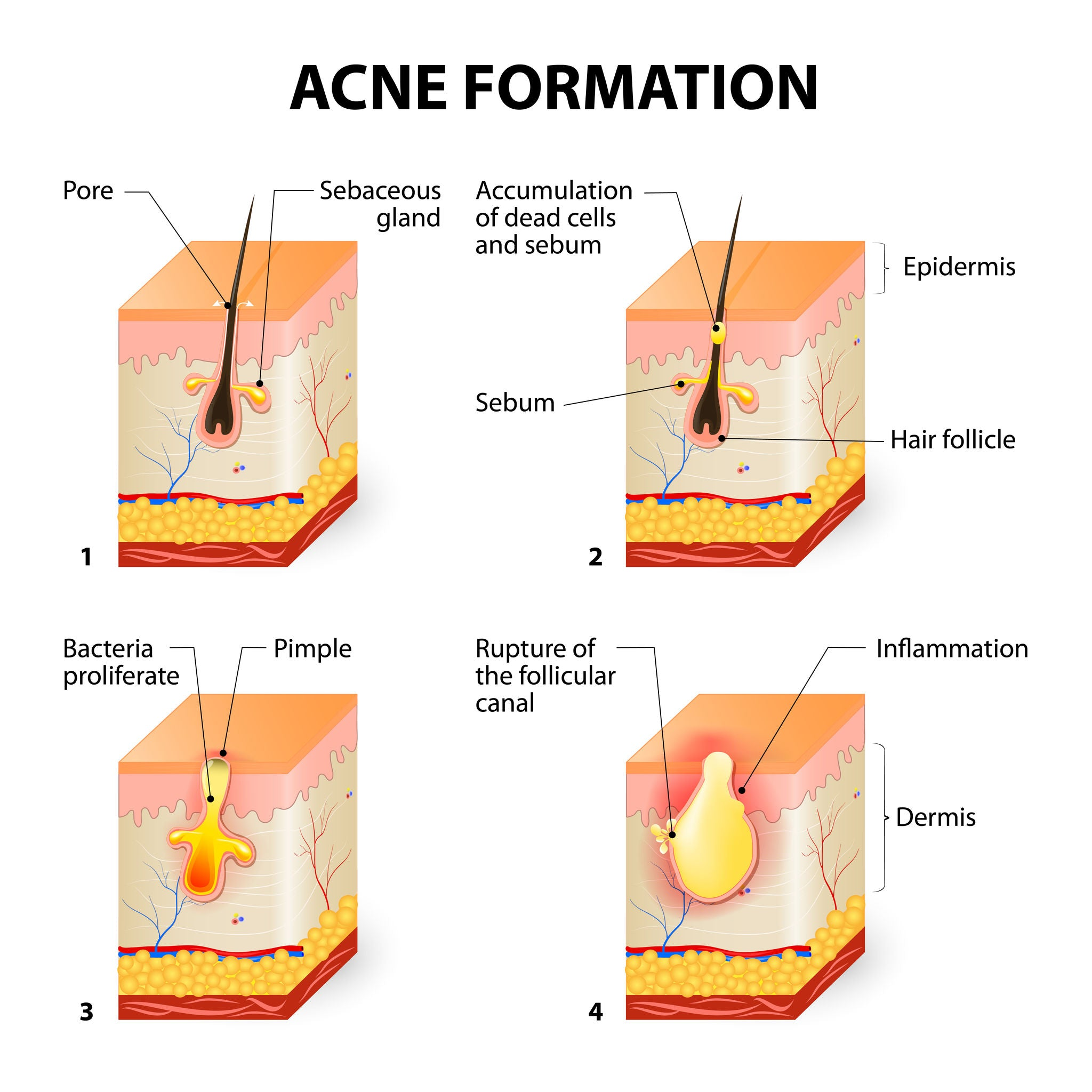 chart of acne formation