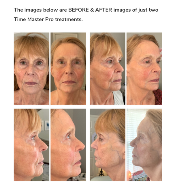 TIME MASTER PRO WITH SCULPLLA H2 COLLAGEN GEL $750+