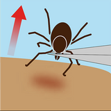 how to safely remove a tick with tickease australia prevention