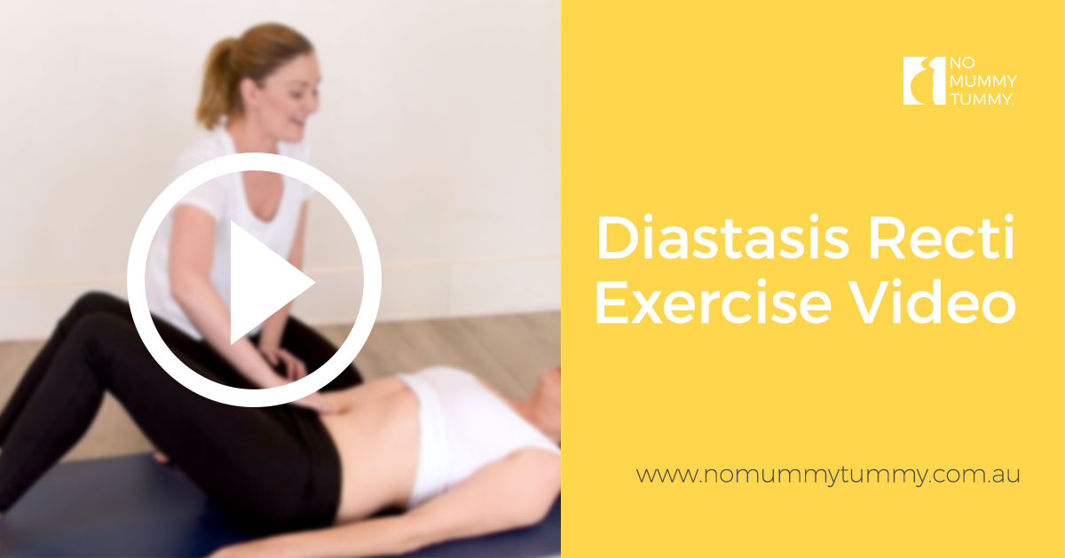 Diastasis Recti Exercise Video
