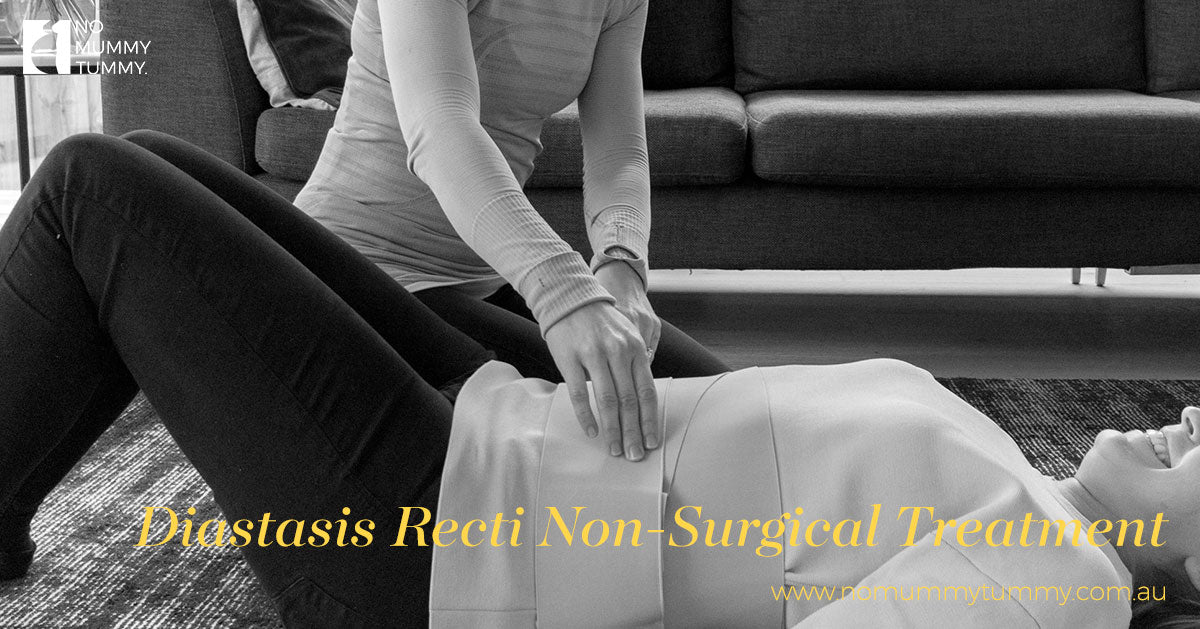 Diastasis Recti Non-Surgical Treatment
