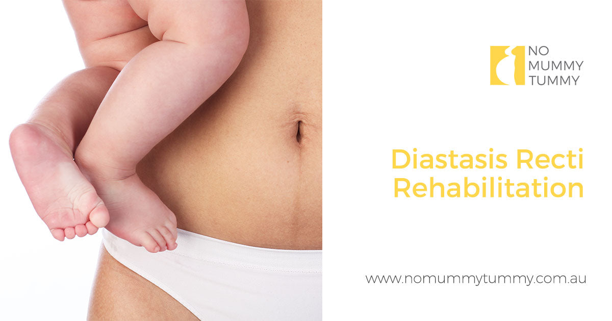 Diastasis Recti Rehabilitation