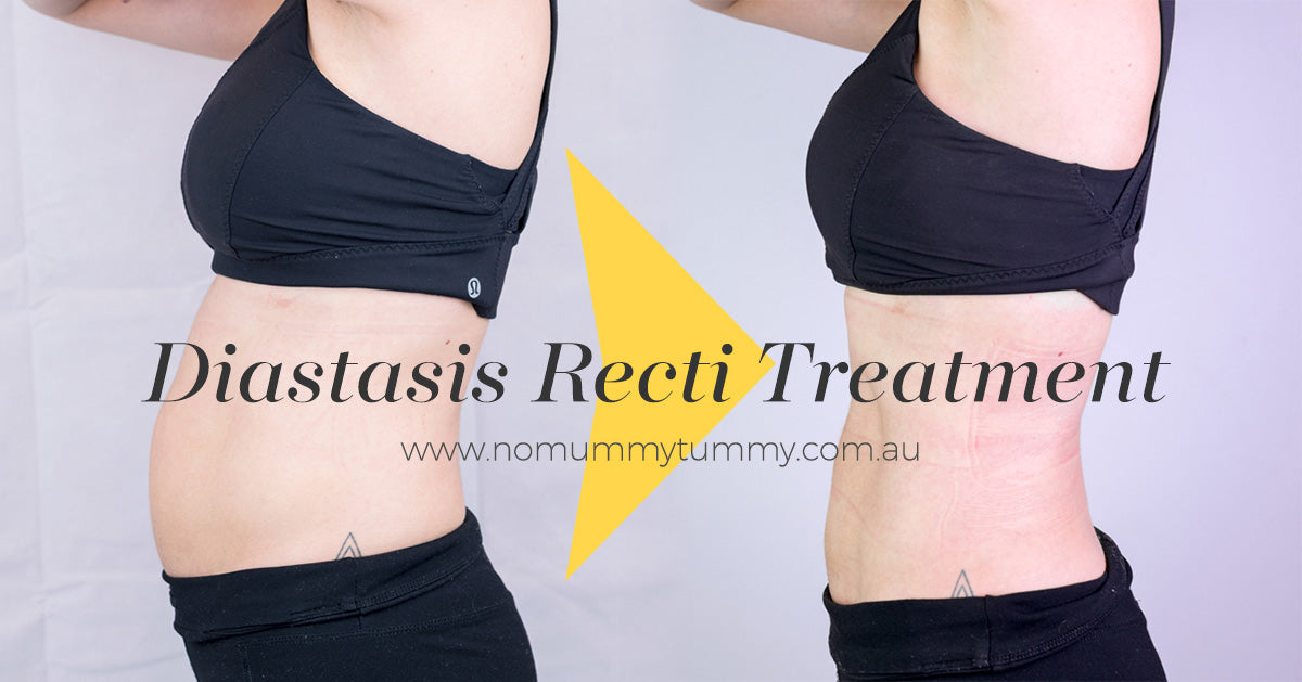 Diastasis Recti Treatment