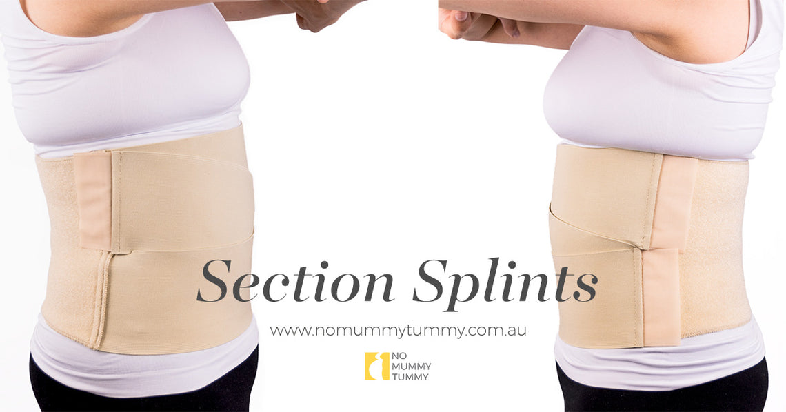 Section Splints