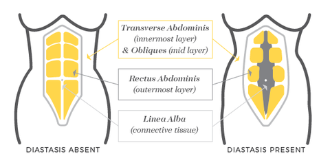 what is diastasis recti AKA Abdominal separation
