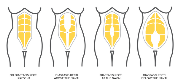 Diastasis can occur at different widths above, at and below the naval.