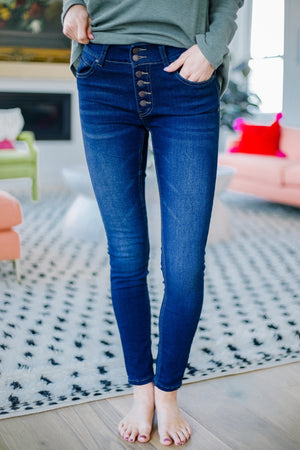 Exposé Button Fly Jeans