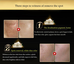Eliminate Melanin Freckle Removal Whitening Repair Facial Cream