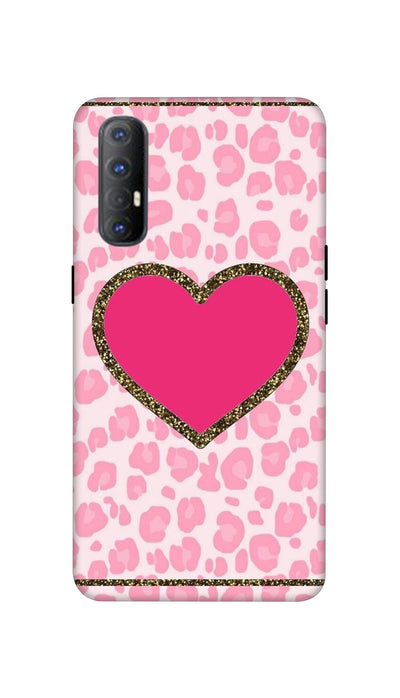 Pink Love Hard Case For Oppo Reno 3 Pro