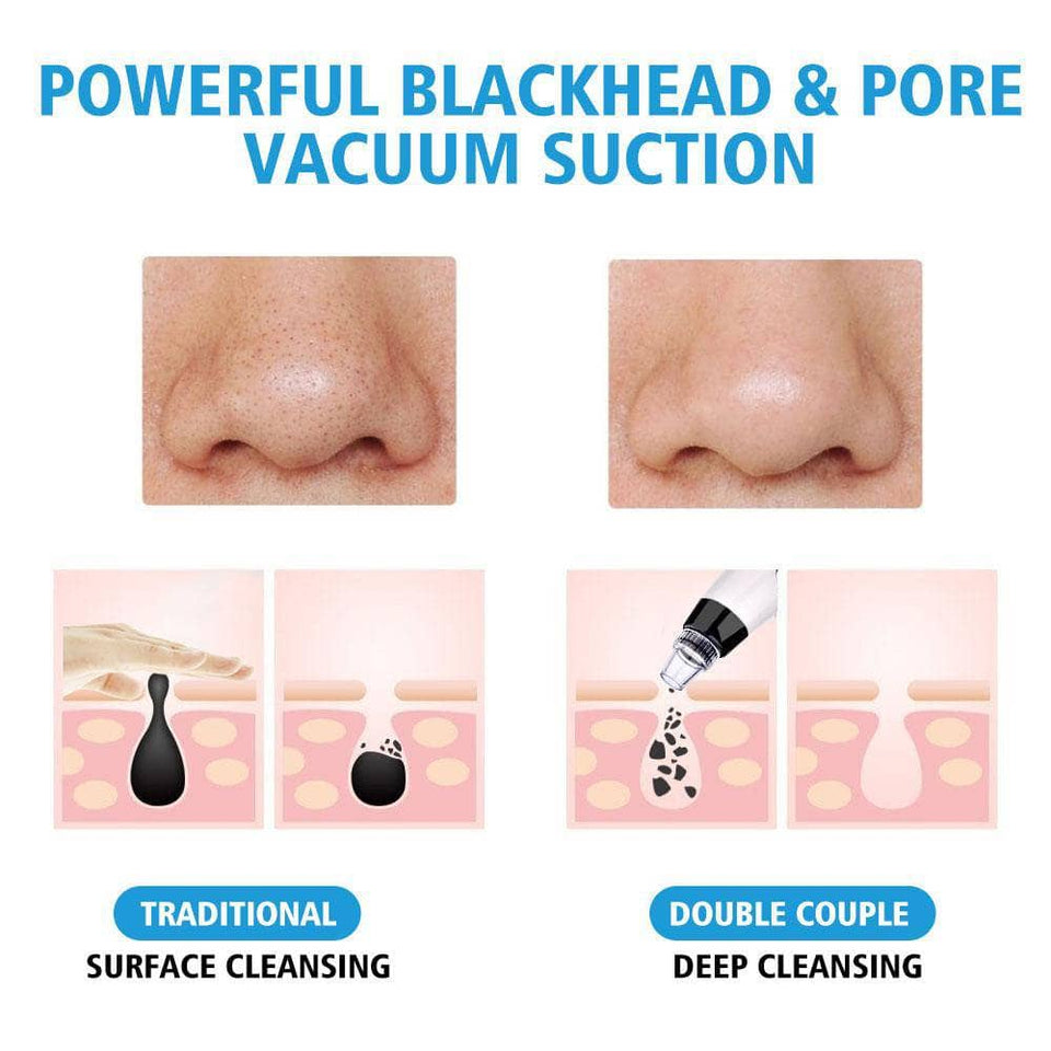 Vacuum Pore Cleanser and Black Head Remover - NovaShop365