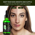Face Care Acne Scar Removal - NovaShop365 ™